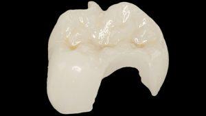Dantų užklotas