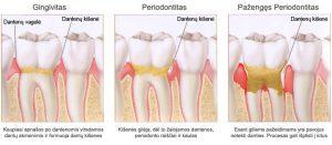 Periodontitas 2